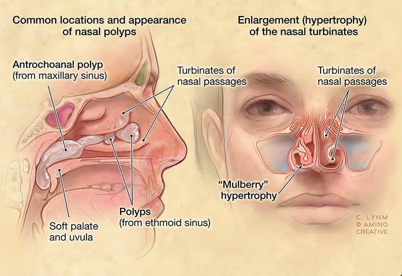 Dr Reuben Setliff Pioneer In Sinus Care