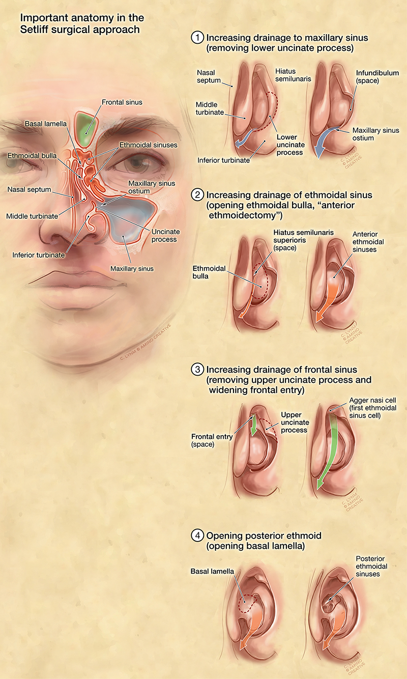 Anatomy Of The Maxillary Sinus Choice Image - human body anatomy